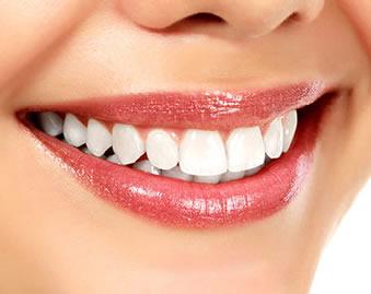 Läs våra tester på tandblekning som du kan göra hemma