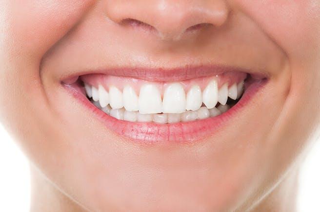 Tandblekning hemma Bäst i test